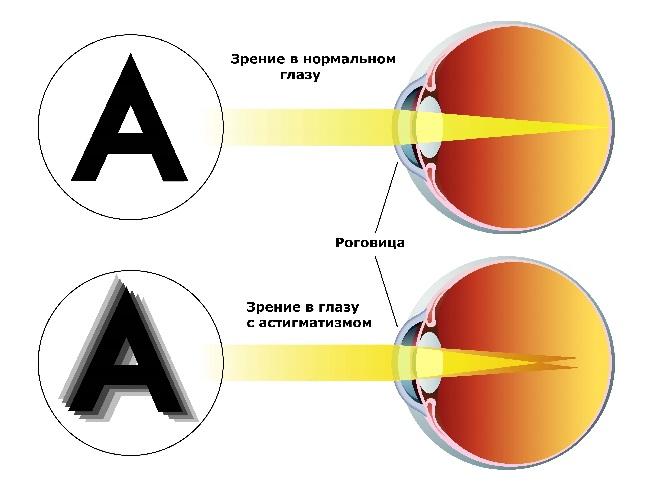 Коррекция зрения минус 2